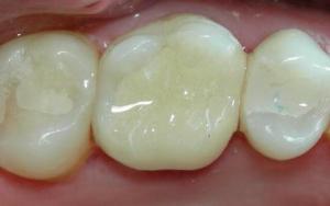 Пломбирование зубов и виды пломб - 2 | Complex Dent