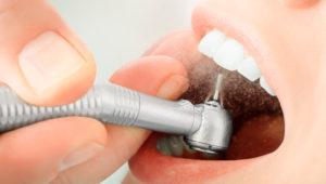 Пломбирование зубов и виды пломб | Complex Dent