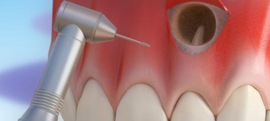Блог клиники Complex Dent / Резекция верхушки корня в боковом отделе - 1 | https://complex-dent.com.ua