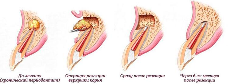 Блог клиники Complex Dent / Резекция верхушки корня в боковом отделе - 2 | https://complex-dent.com.ua