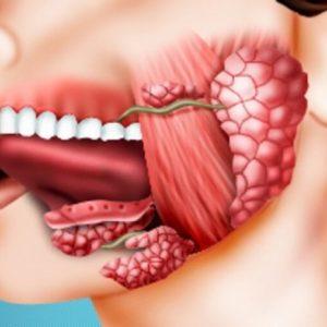 Удаление ретенционной кисты | Complex Dent
