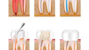 Лечение корневых каналов и пломбирование | Complex Dent