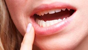 Вскрытие абсцесса и причины его возникновения | Complex Dent