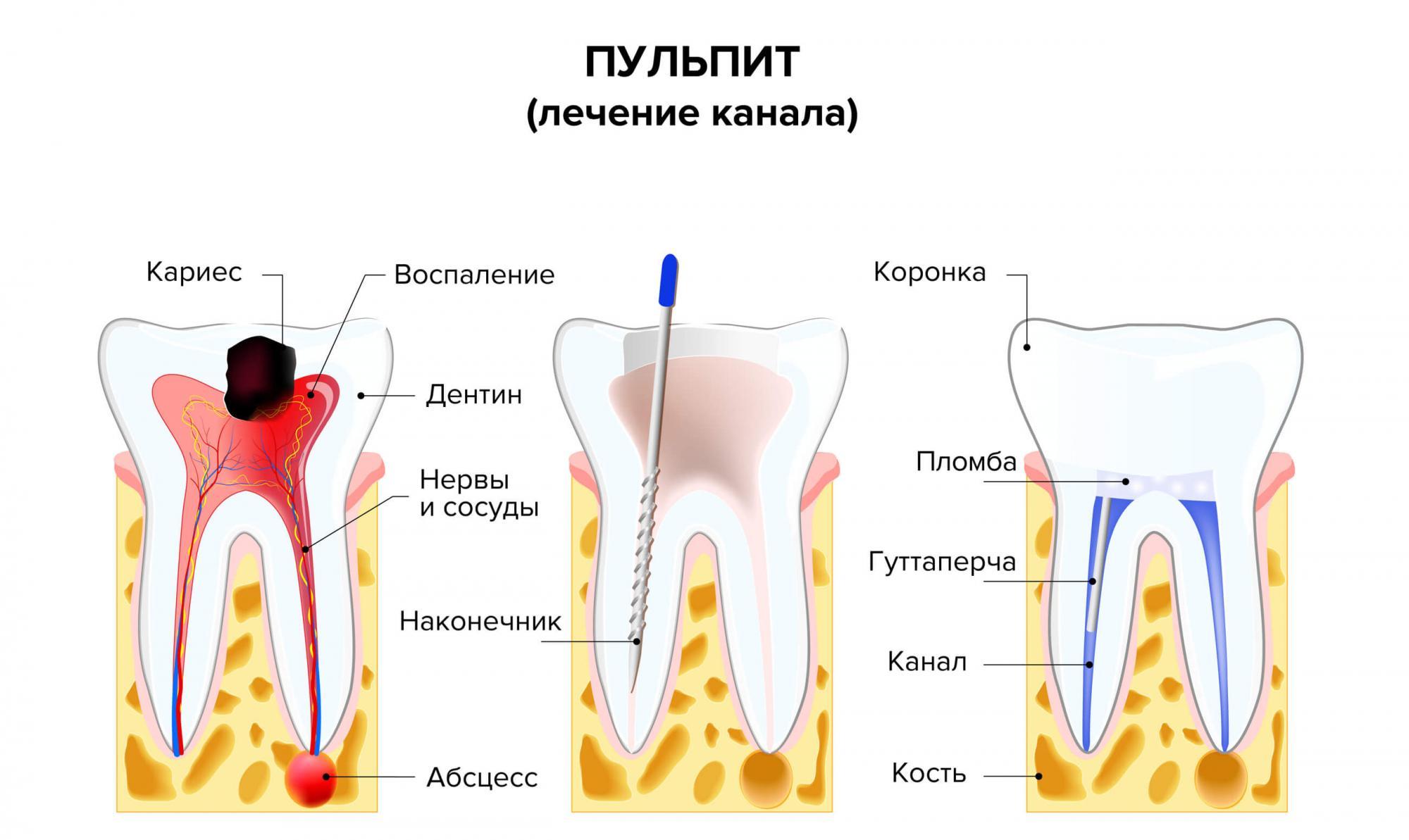Лечение корневых каналов и пломбирование - 1 | Complex Dent