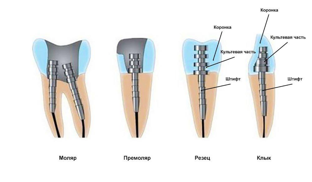 Установка штифта в зуб. Современные технологии наращивания зубов - 2 | Complex Dent