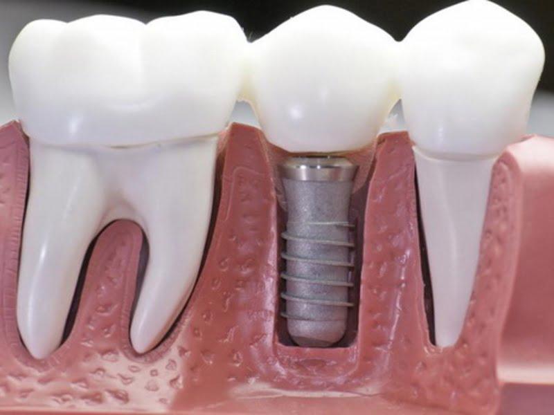 Установка штифта в зуб. Современные технологии наращивания зубов - 3 | Complex Dent