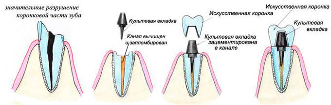 Культевая вкладка и для чего применяется - 1 | Complex Dent