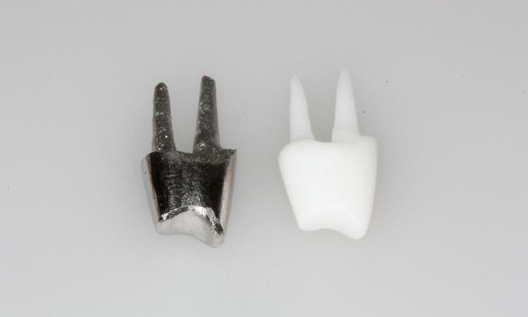 Культевая вкладка и для чего применяется - 2 | Complex Dent