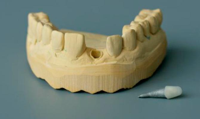 Культевая вкладка и для чего применяется - 3 | Complex Dent
