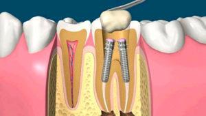 Установка штифта в зуб. Современные технологии наращивания зубов | Complex Dent