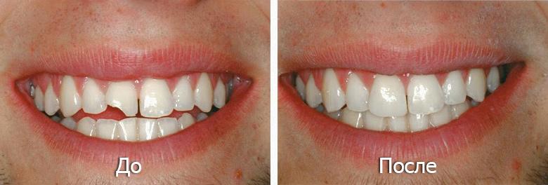 Реставрация передних зубов - 1 | Complex Dent