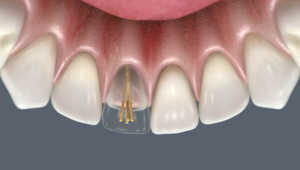 Реставрация передних зубов | Complex Dent
