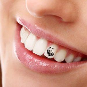 Украшения для зубов | Complex Dent