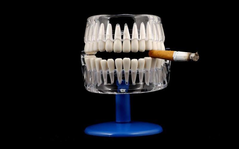 Блог клиники Complex Dent / Курение и его влияние на зубы - 1 | https://complex-dent.com.ua