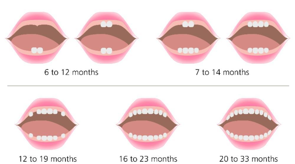 Прорезывание зубов у ребенка - 2 | Complex Dent