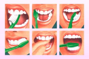 Правильная чистка зубов - 1 | Complex Dent