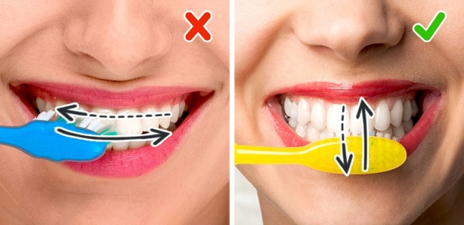 Основные ошибки при чистке зубов - 1   Complex Dent