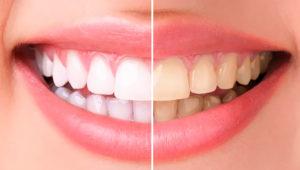 Отбеливание зубов | Complex Dent