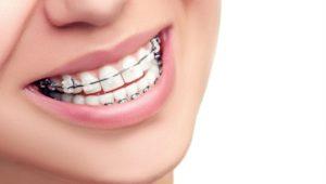 Исправление прикуса | Complex Dent