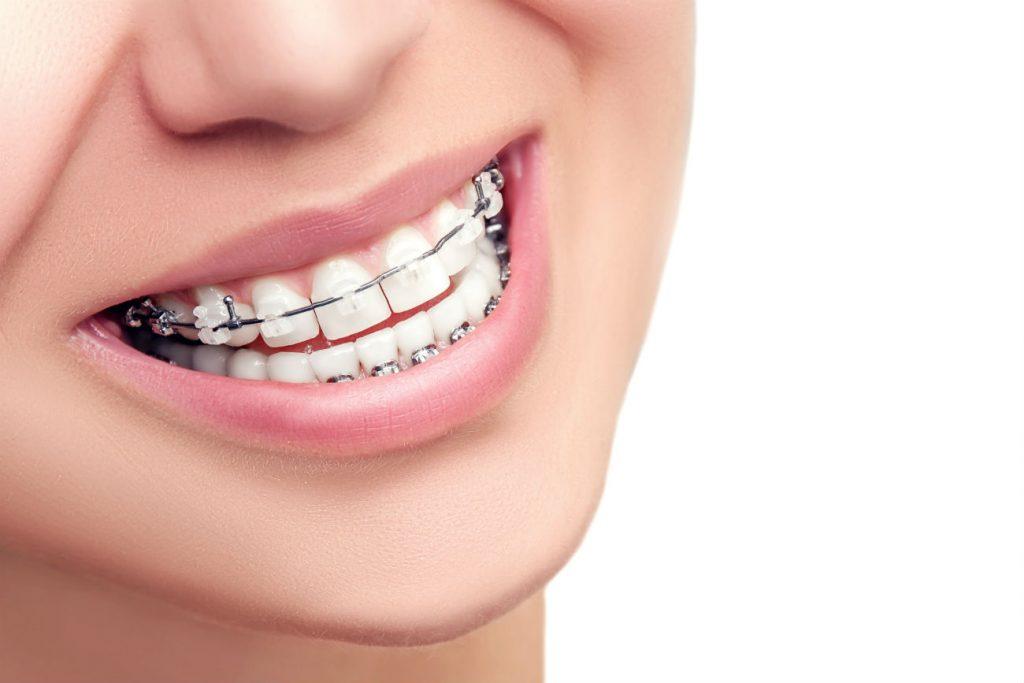 Блог клиники Complex Dent / Исправление прикуса | https://complex-dent.com.ua