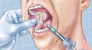 Виды анестезии в стоматологии - 3 | Complex Dent