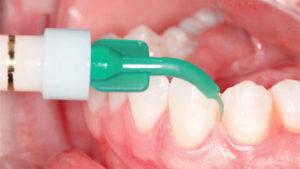 Виды анестезии в стоматологии - 1 | Complex Dent