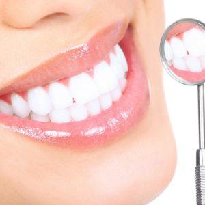 Виды отбеливания зубов: их преимущества и недостатки | Complex Dent