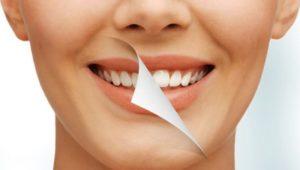Эффективны ли восстановительные стоматологические процедуры для коррекции улыбки? | Complex Dent