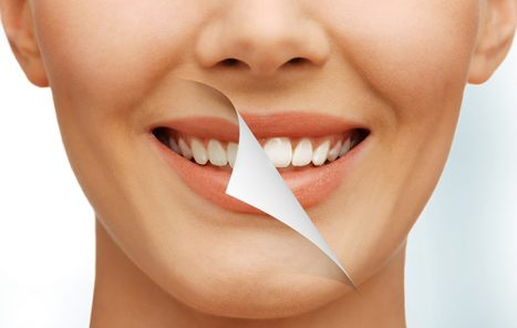 Блог клиники Complex Dent - 2 | https://complex-dent.com.ua