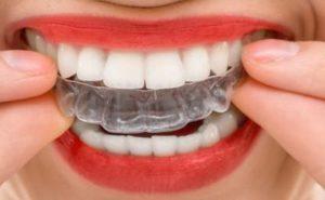 Исправление прикуса - 1 | Complex Dent