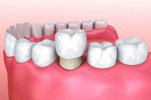 Эффективны ли восстановительные стоматологические процедуры для коррекции улыбки? -3  | Complex Dent