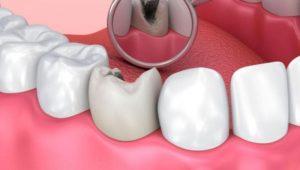 Лечение среднего кариеса | Complex Dent