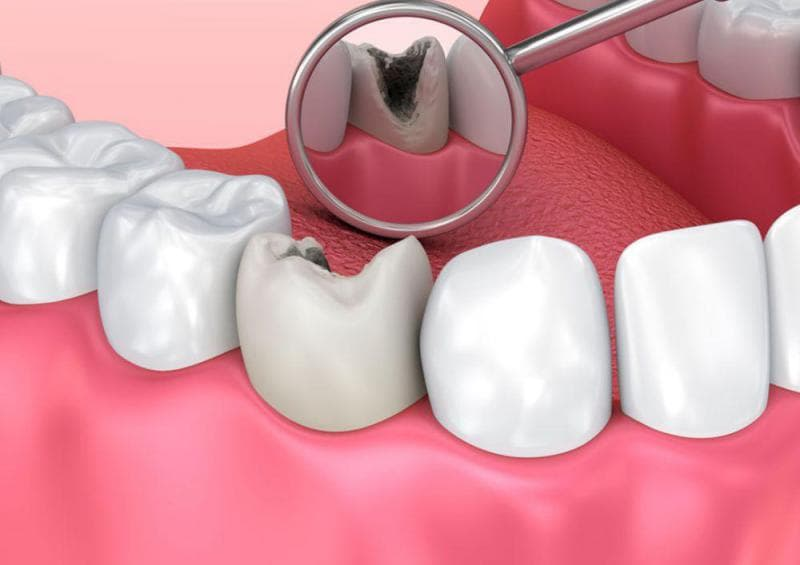 Блог клиники Complex Dent - 7 | https://complex-dent.com.ua