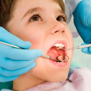 Лечение кариеса молочных зубов: стоит ли бояться? | Complex Dent