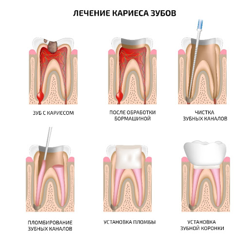Лечение среднего кариеса - 2 | Complex Dent