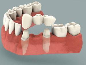 Эффективны ли восстановительные стоматологические процедуры для коррекции улыбки? -2  | Complex Dent