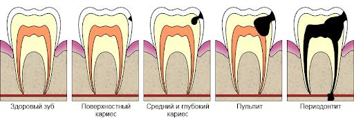 Лечение среднего кариеса - 1 | Complex Dent
