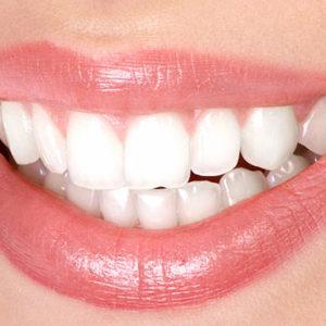 Мифы о здоровых зубах: 8 интересных фактов | Complex Dent