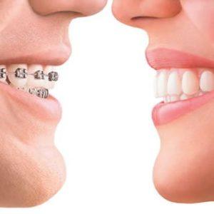 Как исправить неправильный прикус, методики лечения | Complex Dent