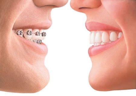 Блог клиники Complex Dent / Как исправить неправильный прикус, методики лечения | https://complex-dent.com.ua