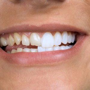 Коронки на зубы. Современные варианты   Complex Dent