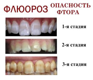 Флюороз зубов: причины появлений, формы, и как его лечить - 2 | Complex Dent