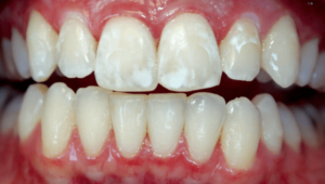 Флюороз зубов: причины появлений, формы, и как его лечить | Complex Dent