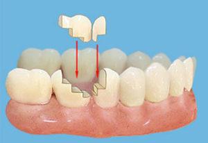 Современная ортопедическая стоматология. Идеальное восстановление зубов - 2 | Complex Dent