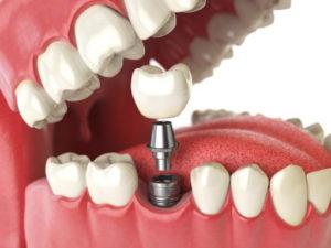 Коронки на зубы. Современные варианты - 1 | Complex Dent