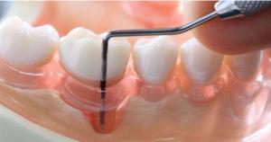 Пародонтоз. Как вылечить? - 1 | Complex Dent