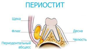 Периостит | Complex Dent