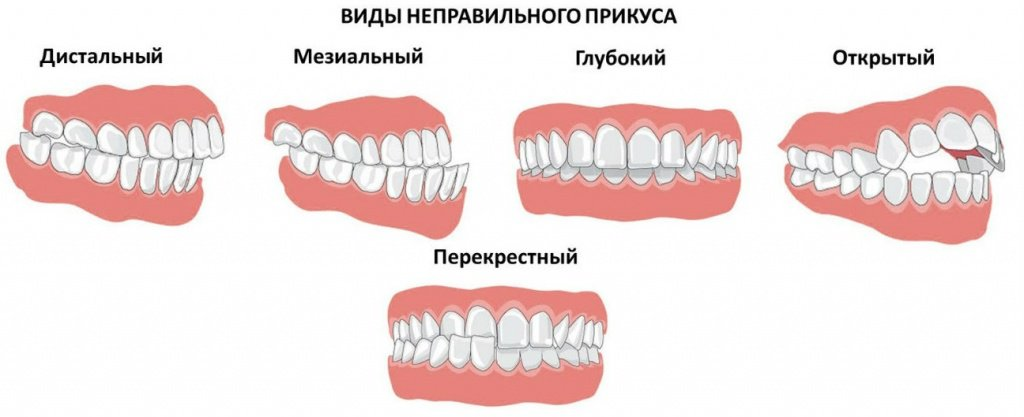Как исправить неправильный прикус, методики лечения - 1 | Complex Dent