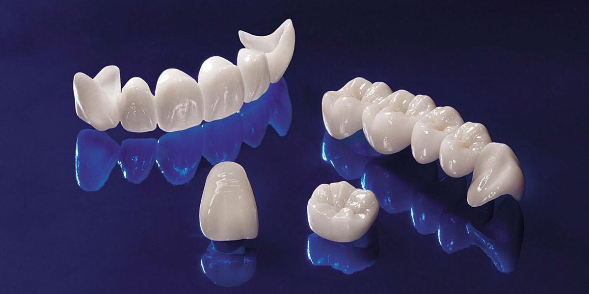 Коронки на зубы. Современные варианты - 2 | Complex Dent