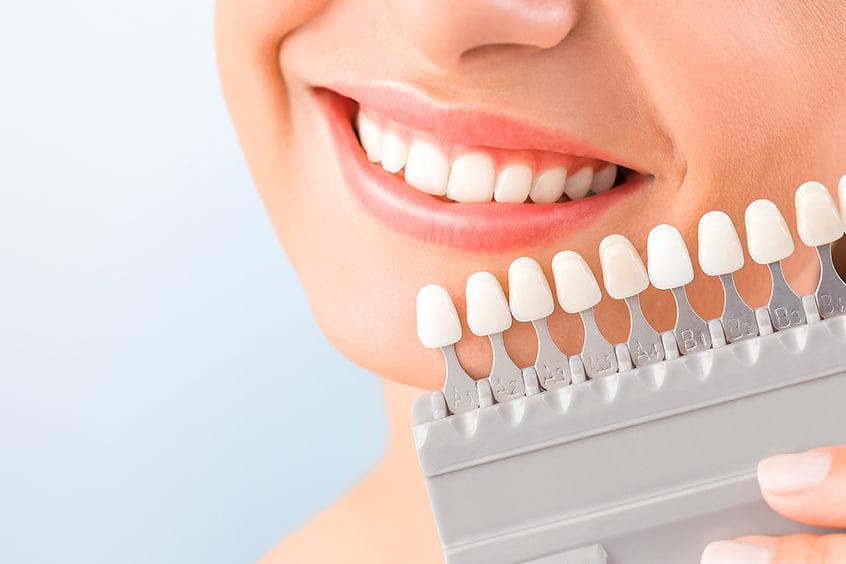 Что такое реставрация (восстановление) зубов - 4 | Complex Dent